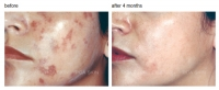 PCA Skin Chemical Peels, Latest Protocols